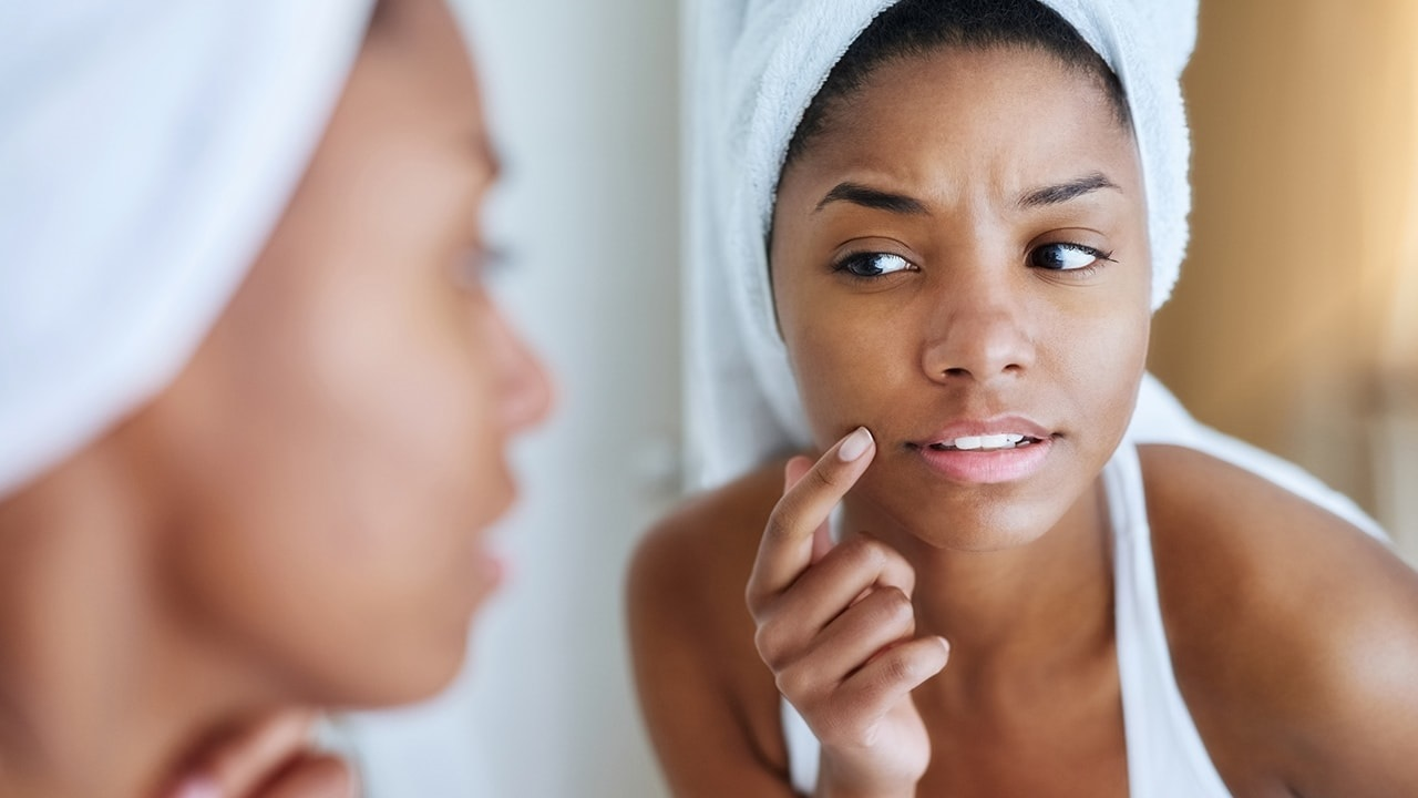 Best tips to prevent acne and pimples